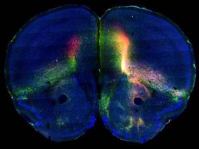 《细胞》:董宏伟绘制大脑皮层神经网络图