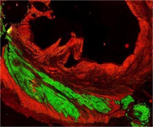 人类干细胞助灵长类心肌再生