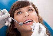 糖尿病并发牙周炎