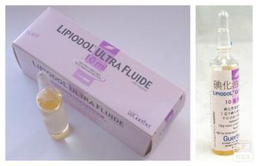 超液态碘化油(碘化油注射