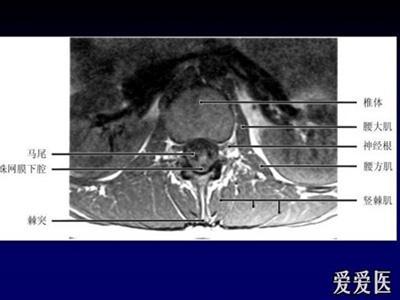 腰椎间盘_椎间盘的解剖和生理(2) - 爱爱医医学网