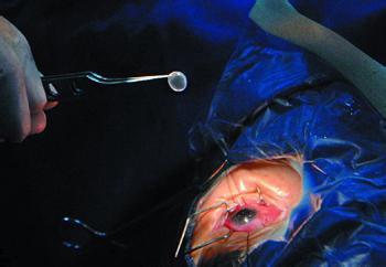 肾移植抗排斥找到新办法