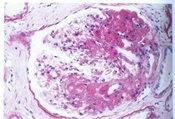 Ⅲ型胶原肾小球病二例