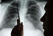 老年早期肺癌一例