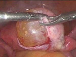 子宫肌瘤腹腔镜诊疗现状与进展