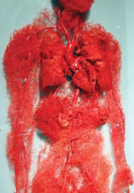 美--网人体_美图:生命的长河——血管 - 爱爱医医学网