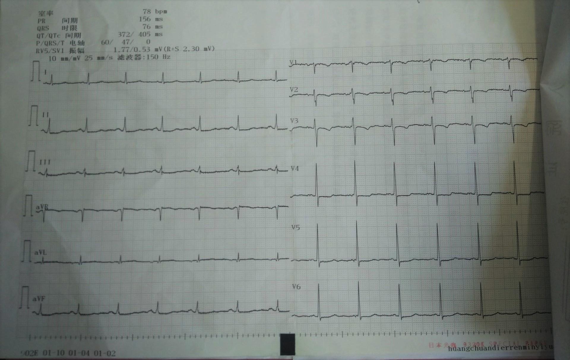 一例住院患者治疗过程中迟发型过敏分析