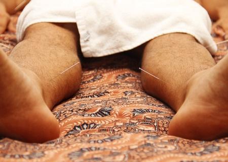 临床应用针灸捻转补泻手法之体会