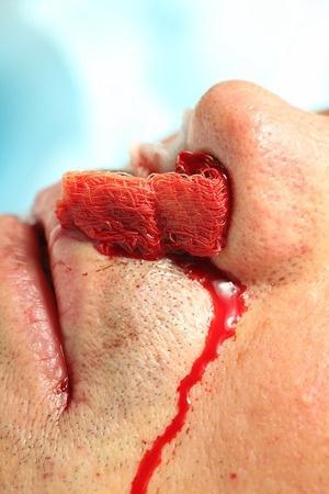 鼻出血罪魁祸首原来是它