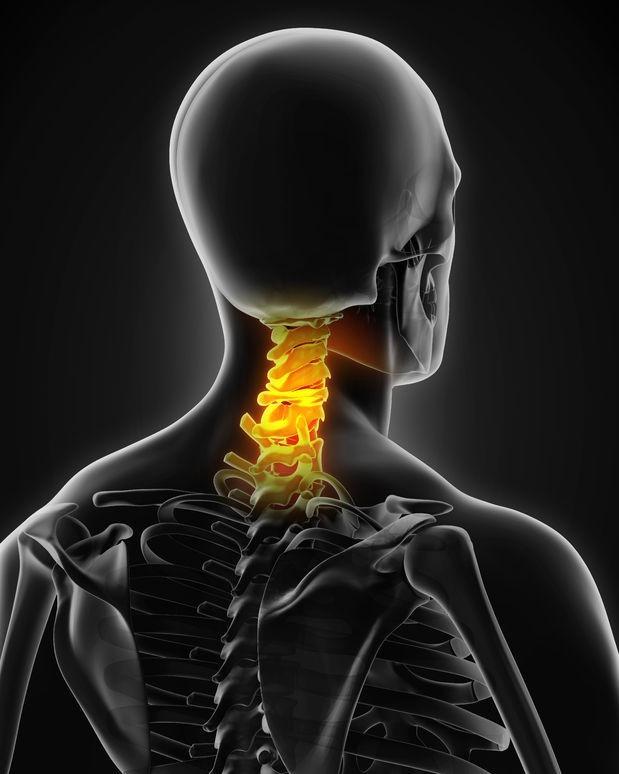 颈椎骨折固定搬运1例