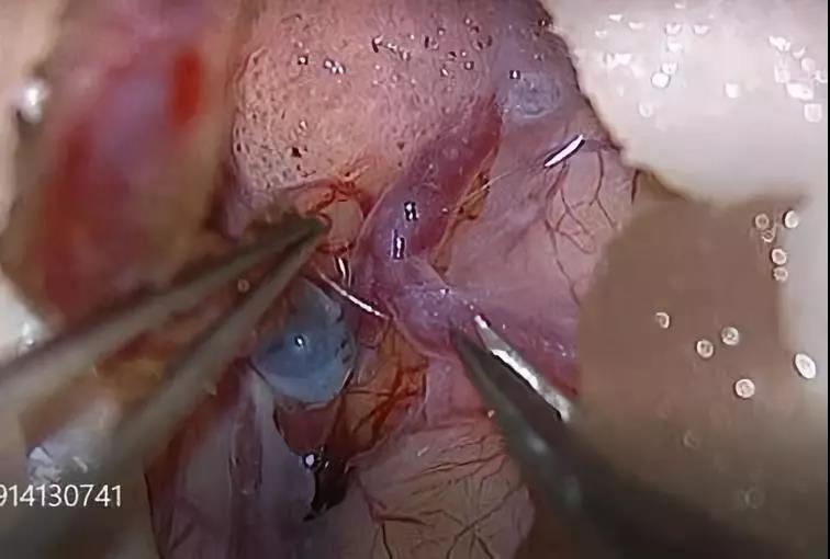 动脉搭桥手术中血管吻合方式的选择