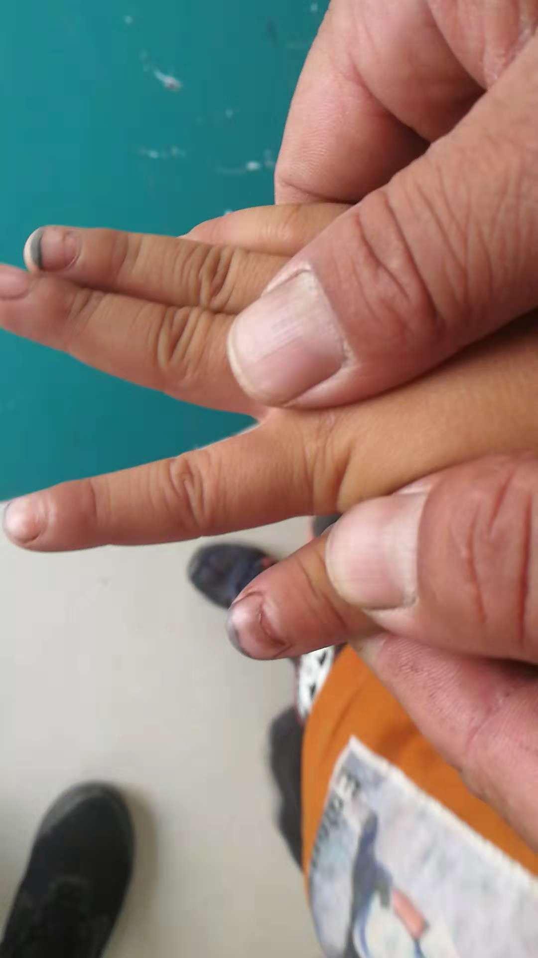 手足口病后指甲脱落