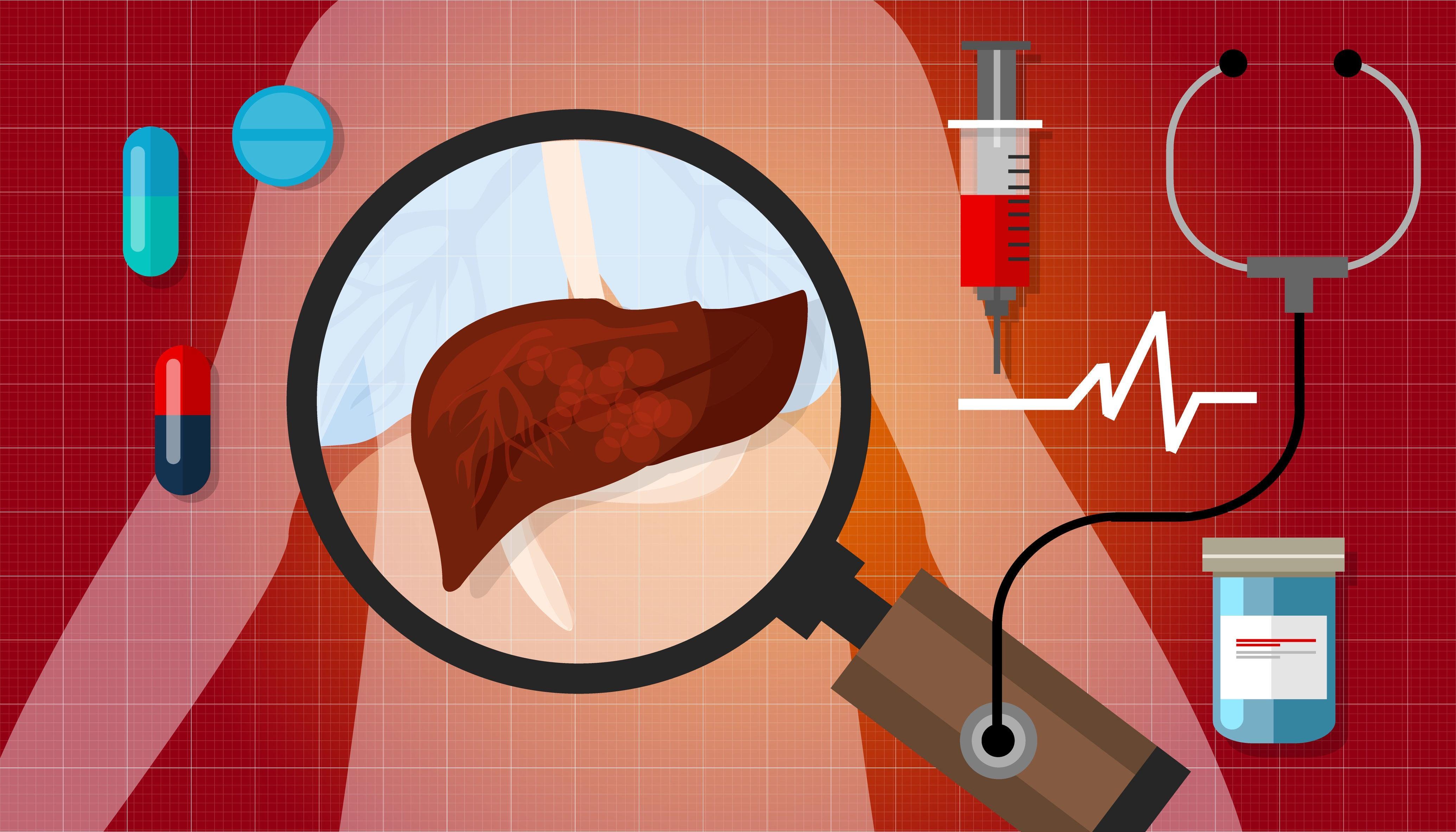 经皮肝穿治疗隐源性肝脓肿
