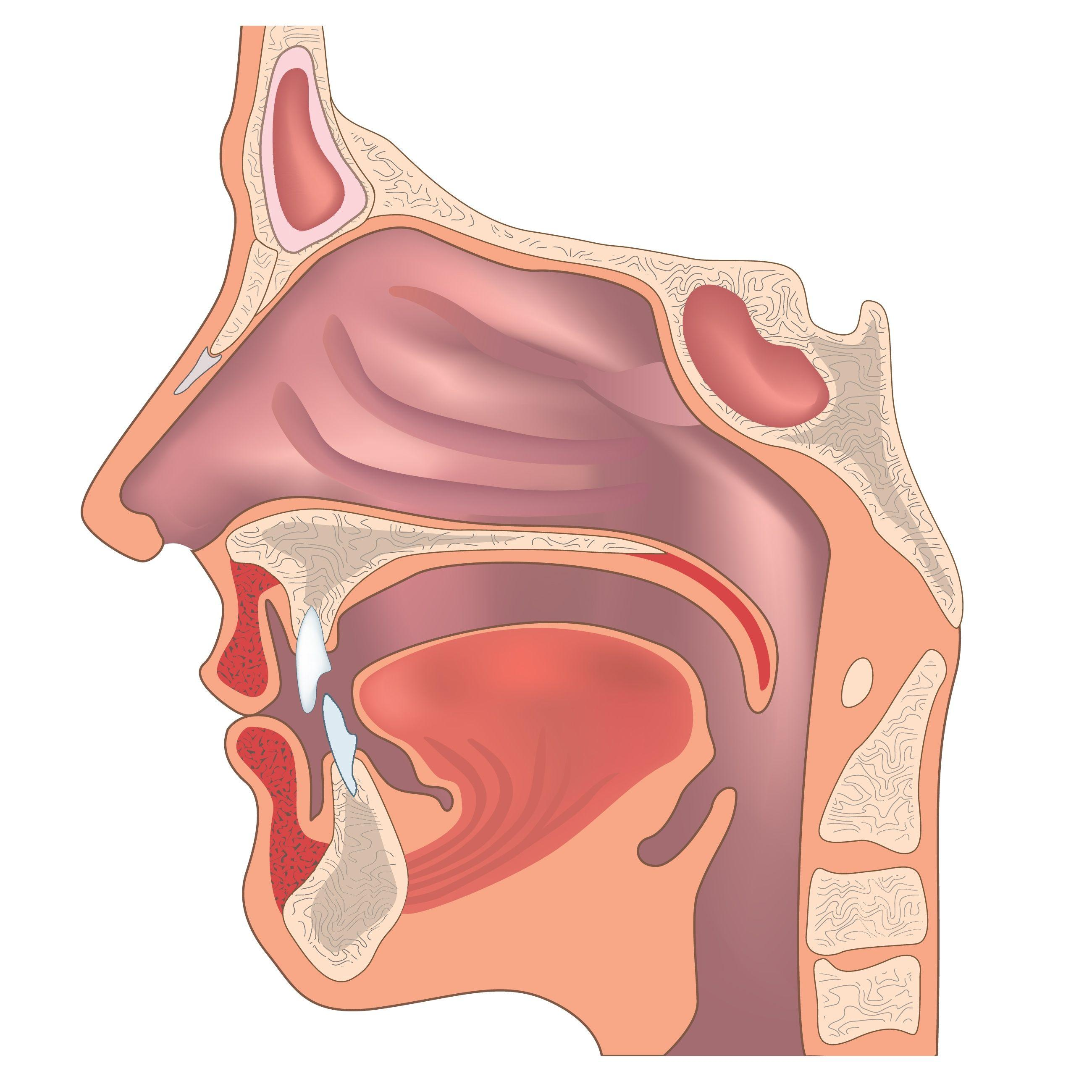 下咽和颈部食管肿瘤的治疗