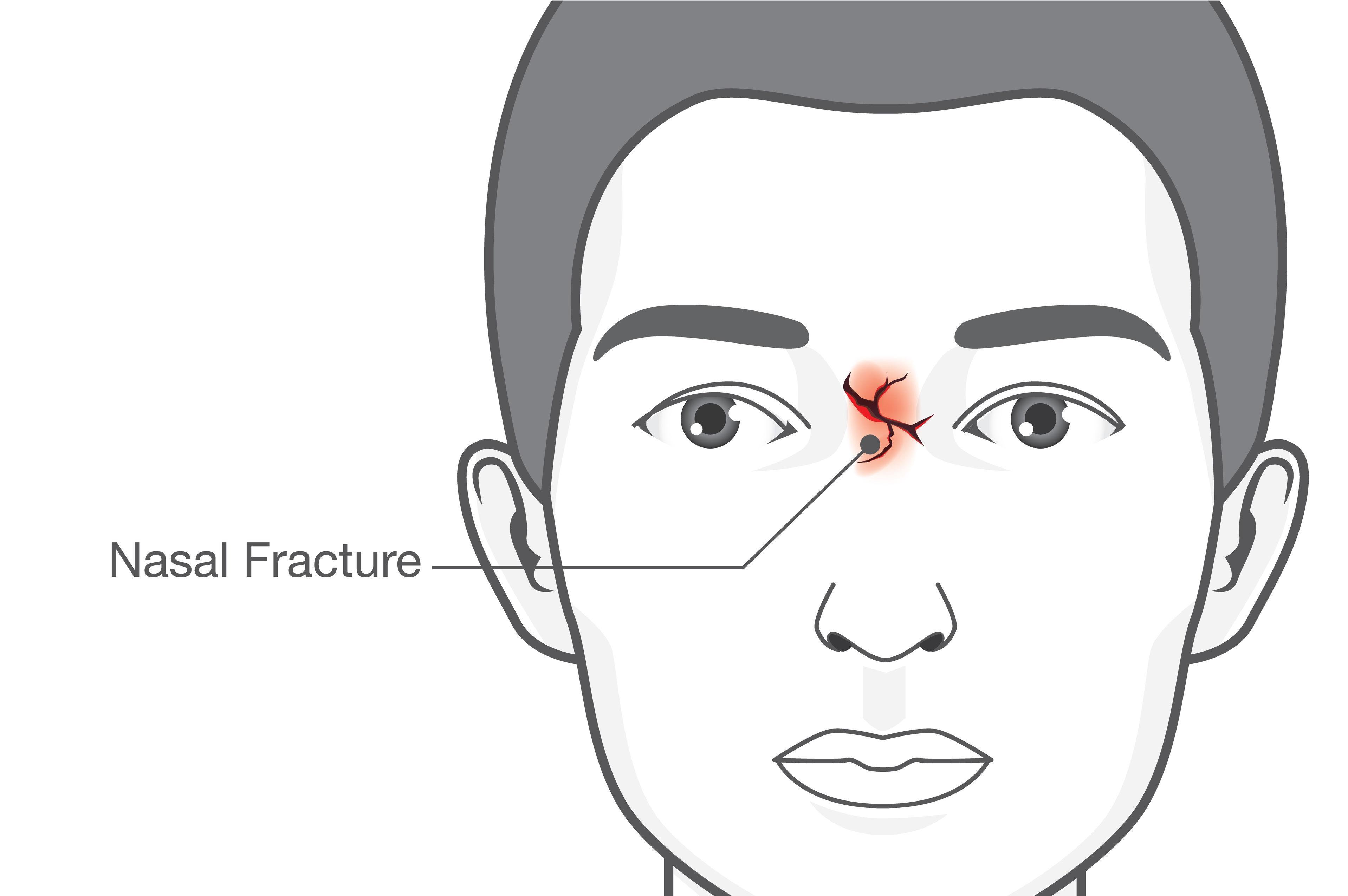 浅谈鼻骨骨折的诊断以及治疗