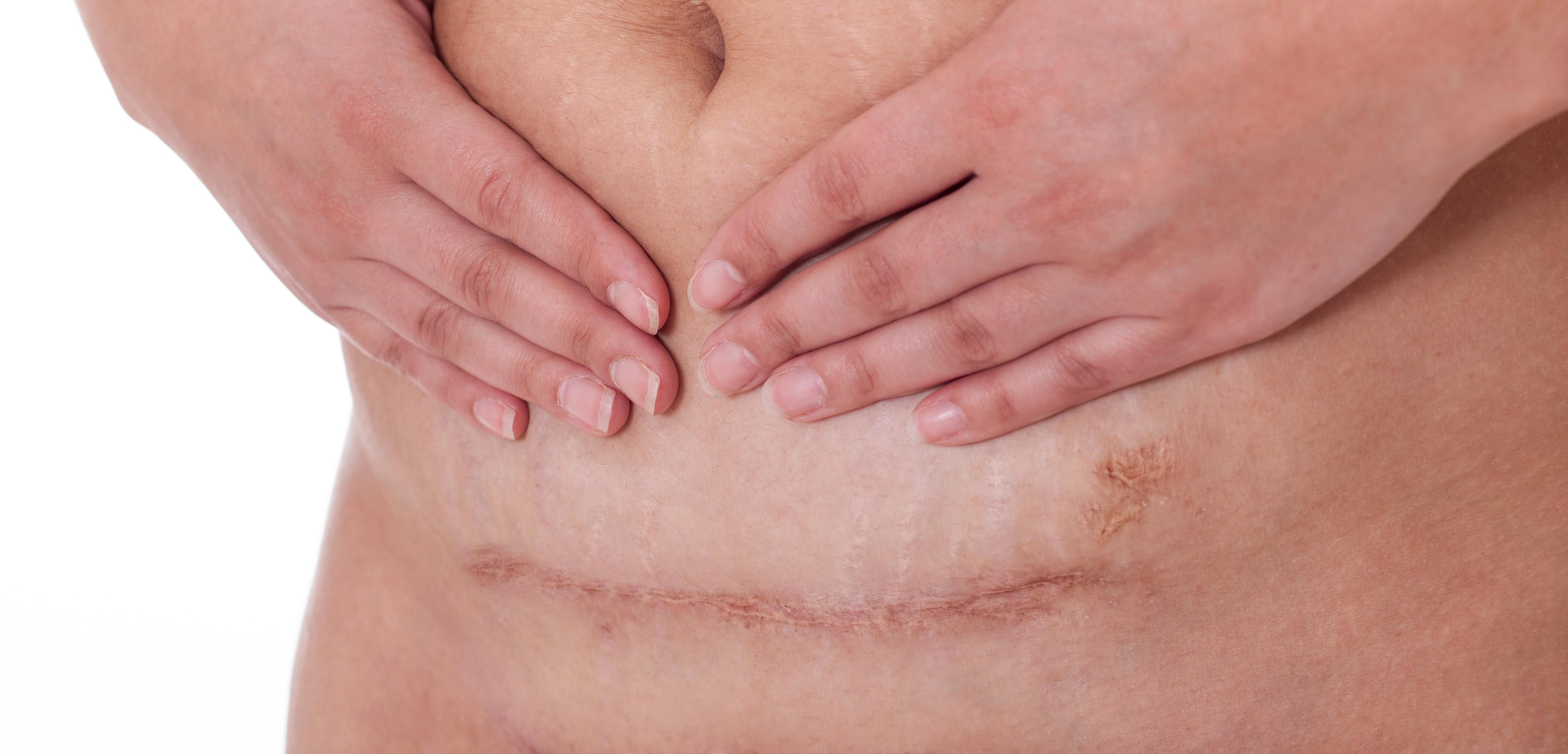 剖宫产疤痕处早期妊娠3例处理体会