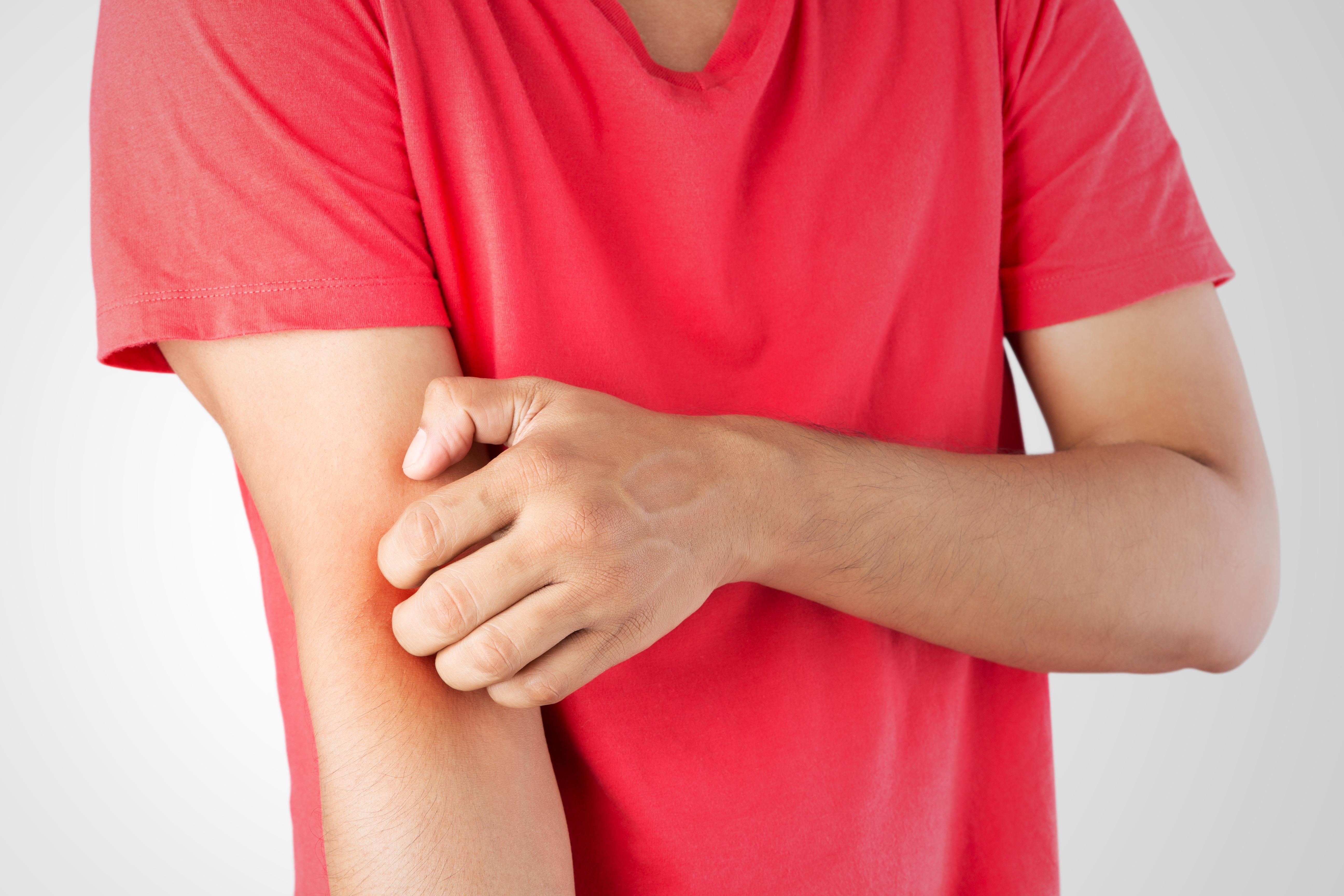 臟腑辨證治療激素依賴性皮炎經驗