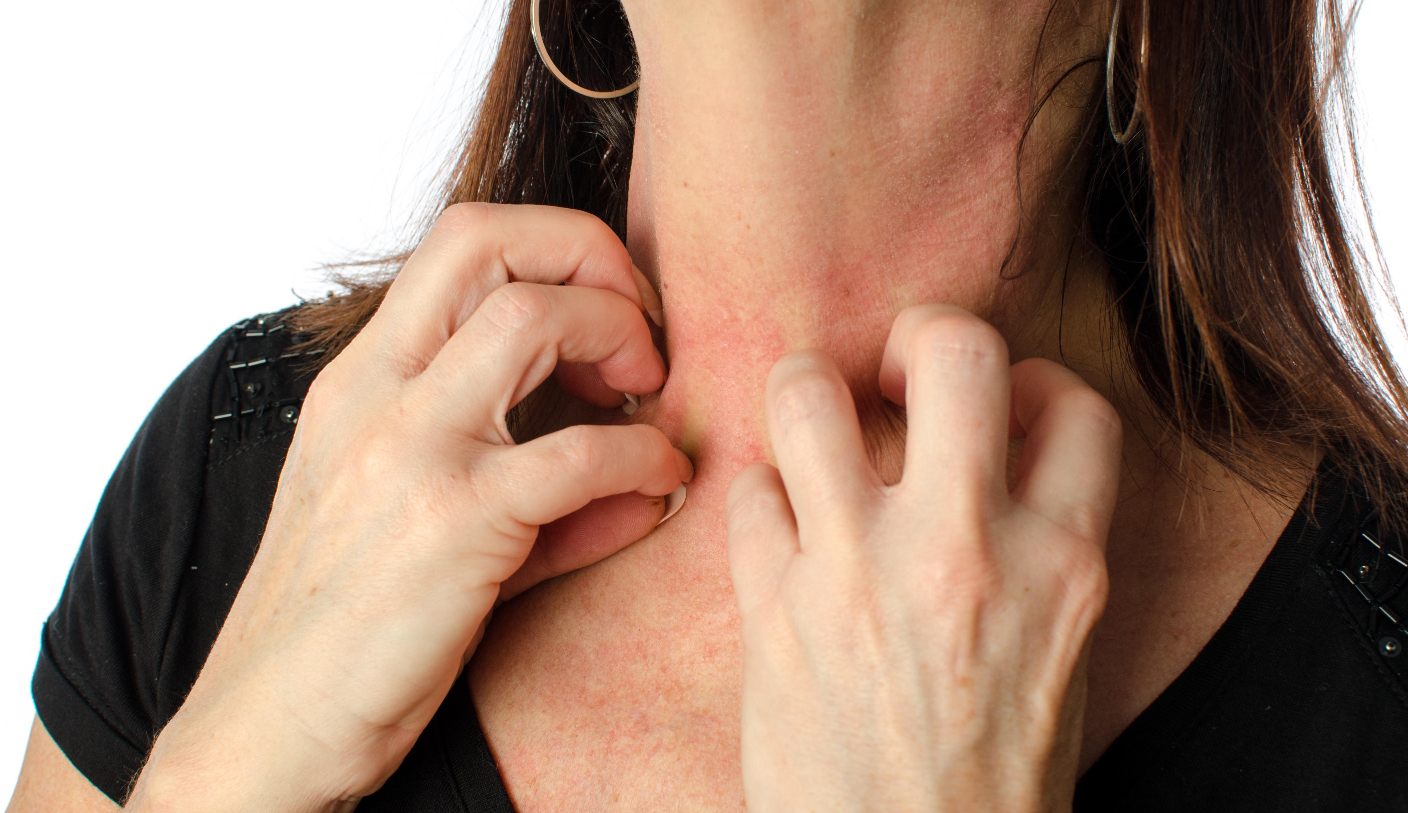 健脾除濕法在亞急性濕疹治療中的應用