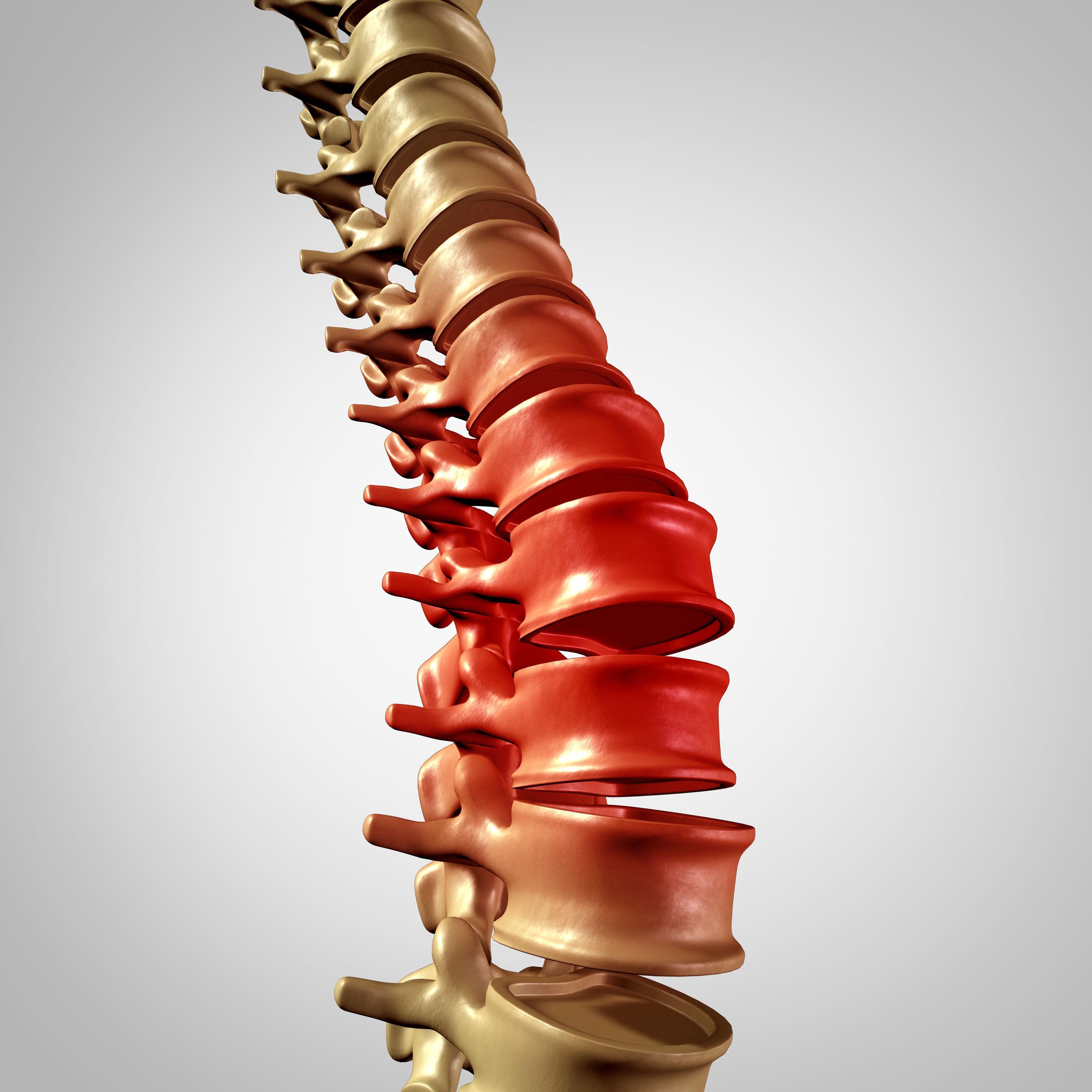 强直性脊柱炎的诊断治疗经验分享