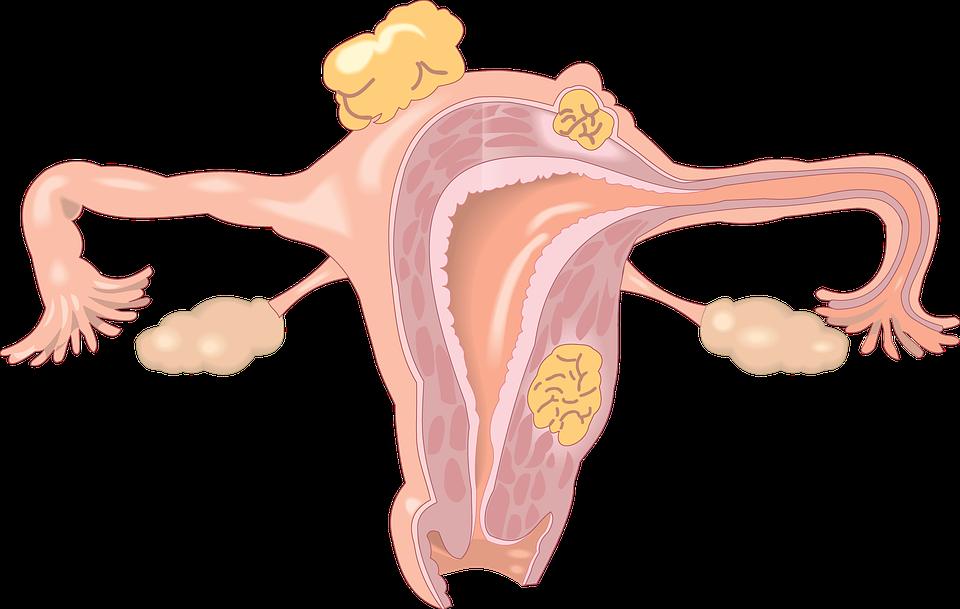 子宫内膜癌误诊3例分析