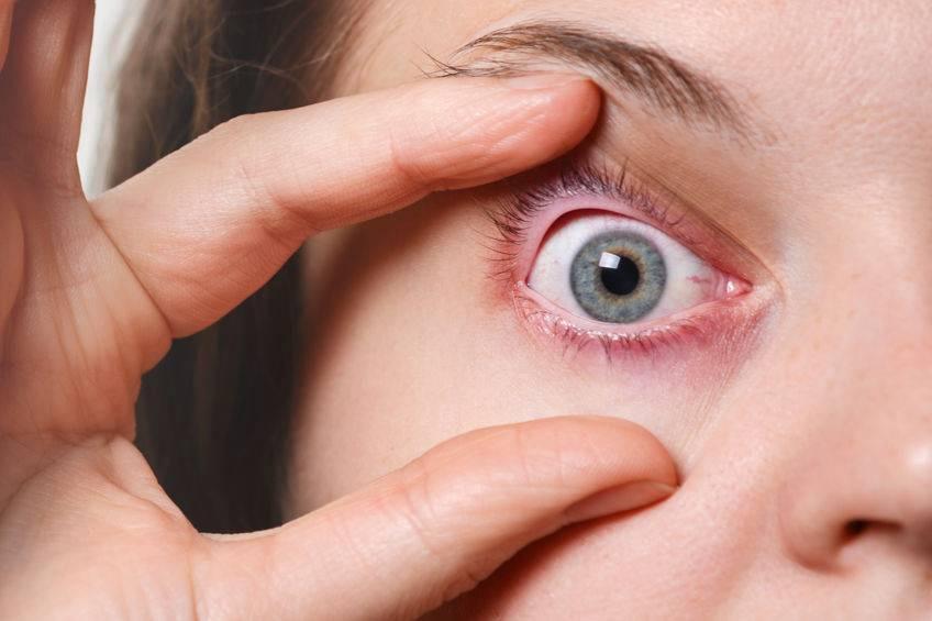 如何解讀臨床瞼腺炎診療指南中的治療規范?