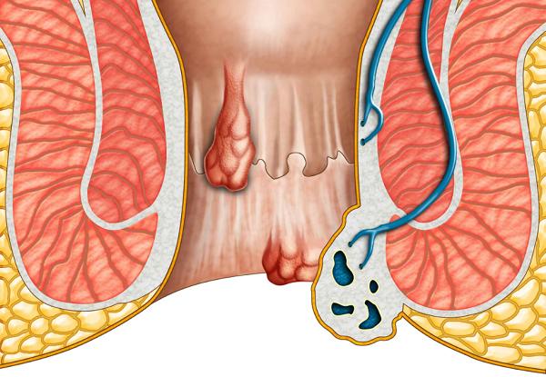 對PPH手術方式的再認識