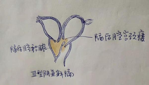 双子宫、双宫颈、双阴道和一侧阴道闭锁的阴道斜隔综合征病例解析