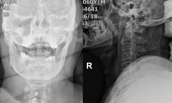 无骨折脱位型颈脊髓损伤的诊疗分析