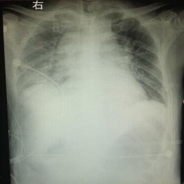 前列腺电切术后并发脓毒性休克病例讨论