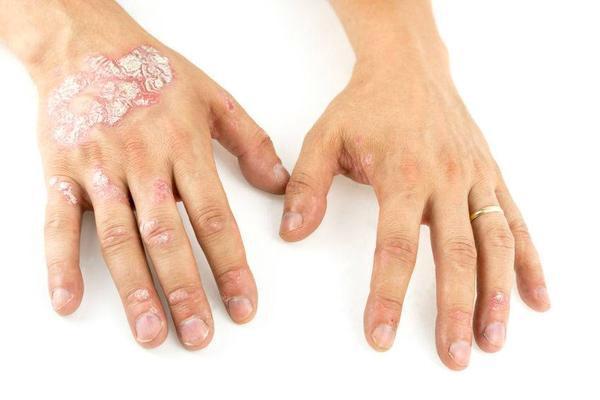 IL-17A抑制劑治療銀屑病的相關問題總結